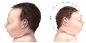 Microcéphalie chez le nouveau-né (à droite). © CDC