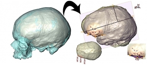 Le CT-scan permet de mieux cerner la morphologie du cerveau en analysant les structures de l'endocrâne