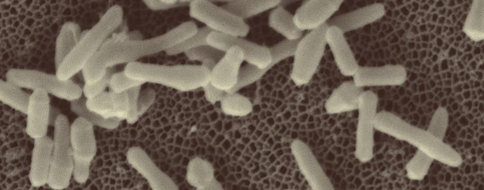 Bacilles de la tuberculose en microscopie électronique à balayage. © Jean-Pierre Tissier et Franco Menozzi (Institut Pasteur de Lille)