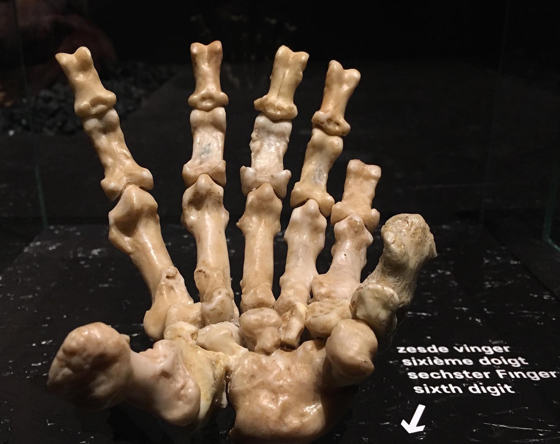 Pourquoi six doigts? La réponse est dans l'expo.