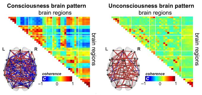 """Le cerveau présente différents schémas de connexions suivant que la personne est consciente ou non. Lorsque nous sommes conscients, les régions du cerveau communiquent intensément, ce qui facilite l'échange d'informations d'une manière efficace. Au contraire, lorsque nous sommes inconscients, nos régions cérébrales deviennent """"inactives"""" et ne se connectent pas entre elles (cohérence autour de zéro, couleur verte). Les personnes inconscientes préfèrent rester plus longtemps dans ce mode et éviter d'explorer d'autres configurations cérébrales, ce qui ne permet pas la flexibilité de l'échange d'informations. © E. Tagliazucchi & A. Demertzi"""