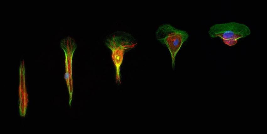 Observations de la modification de la structure d'une cellule en migration (© UMons)