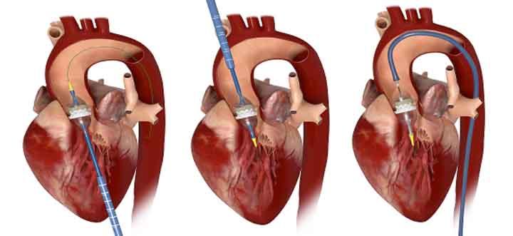 Le placement d'une nouvelle valve aortique par la technique TAVI peut se réaliser par voie apicale (1), transaortique (2), ou transfémorale (3).