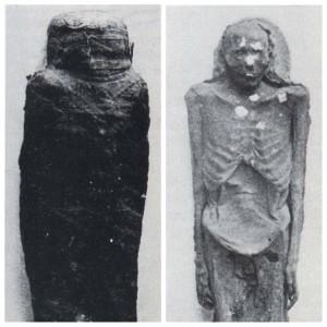 La momie égyptienne d'époque romaine lors de son étude dans les années 1970, avec et sans bandelettes.